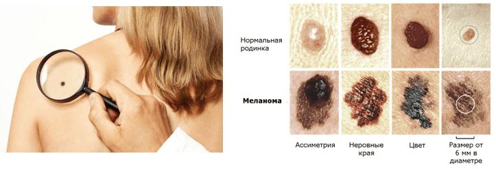 Диагностики меланомы МЦ «АРМЕД»