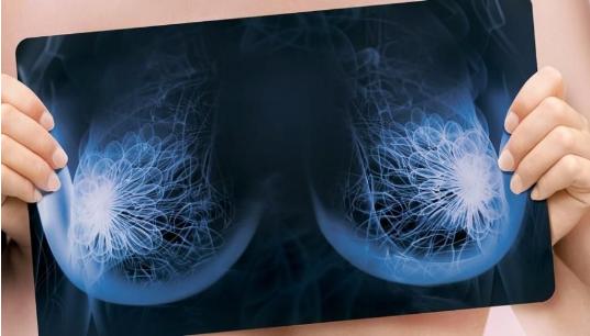 Маммография в Сочи